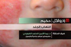 حكيم: التهاب الجلد