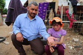 أميرة.. طفلة تنتظر عودة البسمة إلى وجهها المحترق بأحد براميل بشار الأسد