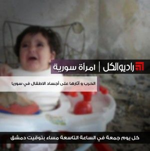 امرأة سورية : الحرب و أثارها على أجساد الاطفال في سوريا